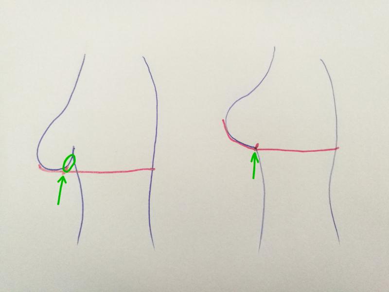 Povešene prsi napram privzdignjenim